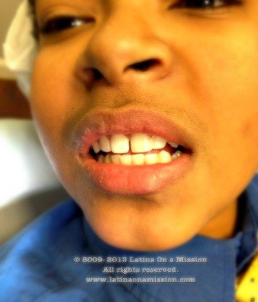 New Tooth_1-28-2013